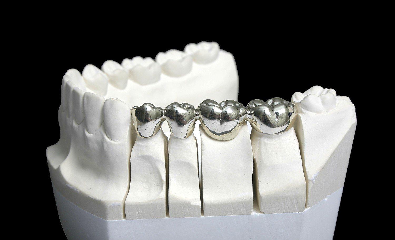 Dentistry Metal Refining